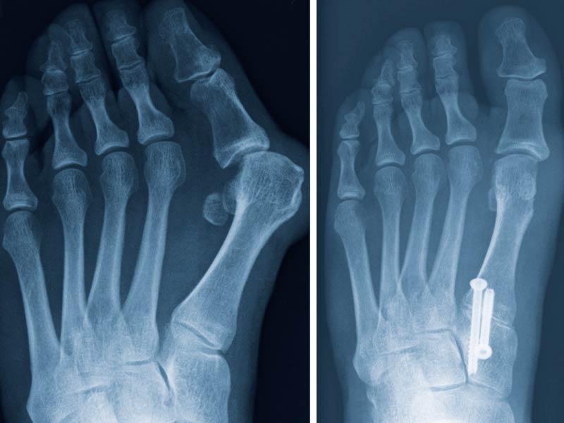 RTG snímek nohy